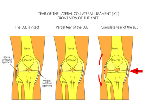 Vector illustration anatomy of a knee joint with healthy ligaments and sprain, tear, rupture of lateral collateral ligament. Front view of straight knee. For advertising, medical publications