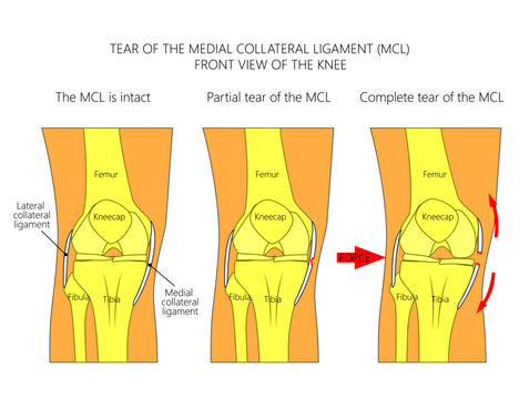 Vector illustration anatomy of a knee joint with healthy ligaments and sprain, tear or rupture of medial collateral ligament. Front view of straight knee. For advertising, medical publications
