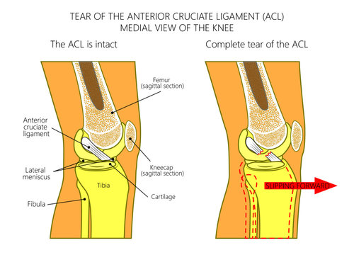 Vector illustration anatomy of a knee joint with healthy and torn anterior cruciate ligament. Side or medial view of straight knee with sagittal section of femur bone. For medical publications