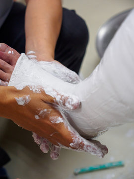 Closeup detail of a physician molding a newly-formed gypsum plaster leg cast for a tibial bone fracture. Vertical orientation. Healthcare and orthopedic medicine.