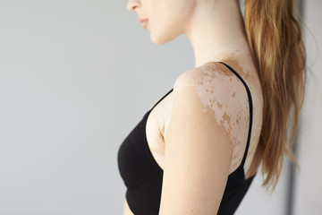 Profile picture of unknown young female having vitiligo disease, dressed in black top, posing at blank studio wall with copyspace for your promotional content. Selective focus on woman's shoulder