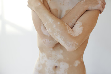 People, health, illness, skin disorders and auto immune disease concept. Cropped studio picture of unknown female crossing arms on her chest, demonstrating skin affected with vitiligo white spots