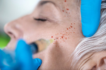 PRP Face Injecting Treatment.  Cosmetic Anti-Aging Platelet Rich Plasma Treatment