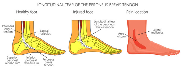 Vector illustration of Peroneal Tendon Injuries. Longitudinal tear of the peroneus brevis tendon. Lateral ankle injury.
