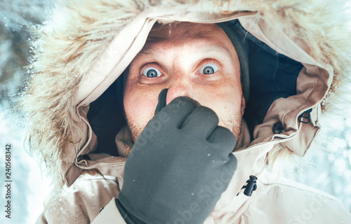 ecc098391dd8d Funny man dressed in Warm Hooded Casual Parka Jacket Outerwear with frozen  nose winter portrait. Health on winter time concept image.