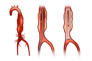 Endovascular aneurysm repair (or endovascular aortic repair) (EVAR)