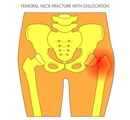 Vector illustration of healthy human hip and femoral neck fracture with dislocation. For advertising and medical publications