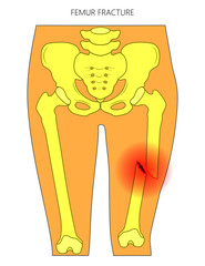 Vector illustration of a human pelvis and hip with femur shaft fracture (broken thighbone). Front view. For advertising and medical publications.