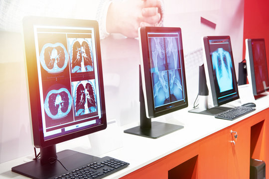 Computers with monitors for medicine