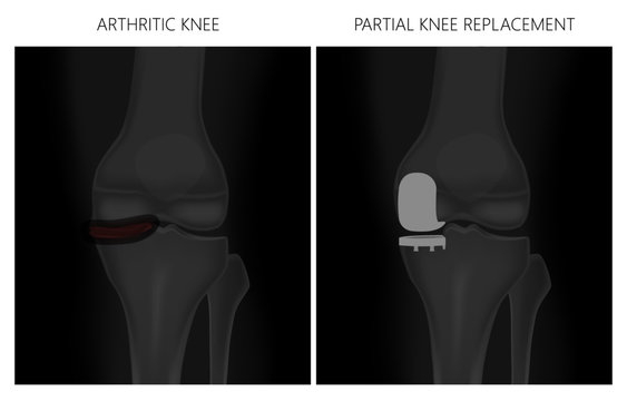 Vector illustration. Anatomy, front x-ray of an arthritic knee joint and a knee after unicompartmental or partial  knee replacement. For advertising and medical publications