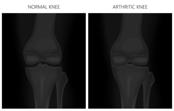 Vector illustration. Anatomy, front x-ray of a healthy knee joint and an arthritic knee. For advertising and medical publications