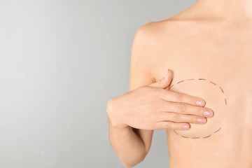 Young woman with marks on breast for cosmetic surgery operation against gray background, closeup. Space for text