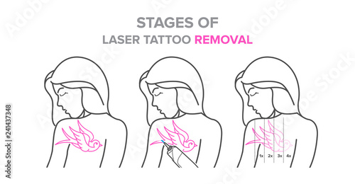 Stages Of Laser Tattoo Removal Vector Illustrations Imagenes De