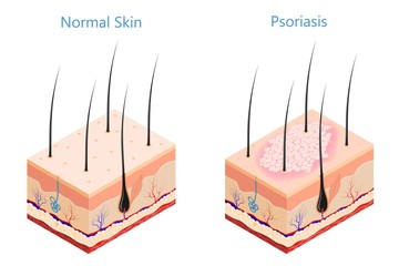 Cut human skin in isometric style on a white background isolated  Medicine problem skin psoriasis Vector illustration of psoriasis disease and healthy skin poster for the study of medical subjects