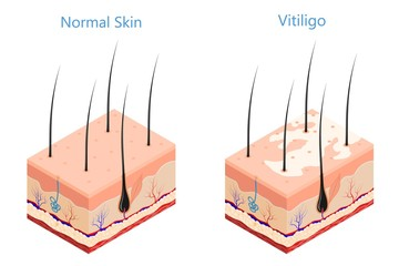 Cut human skin in isometric style on a white background isolated  Medicine problem skin vitiligo Vector illustration of vitiligo disease and healthy skin poster for the study of medical subjects