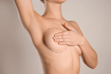 Young woman with marks on breast for cosmetic surgery operation against grey background