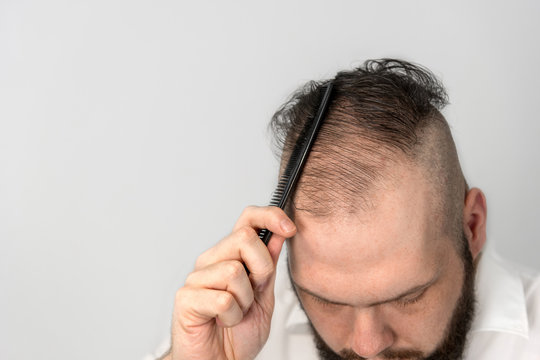 young man combs his thinning hair