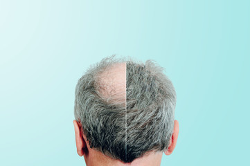Before and after, Rear view of a male head without hair. Hair loss concept, bird's nest on the head. Problems with hair regrowth, shampoo for facial hair growth.