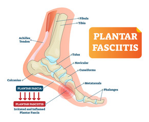 Plantar fasciitis vector illustration. Labeled human feet disorder diagram.