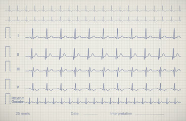 ECG chart image of medical patient