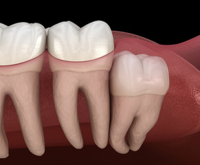 Healthy teeth and wisdom tooth with vertical impaction . Medically accurate tooth 3D illustration