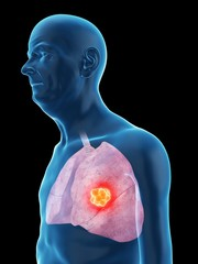 Illustration of an old man's lung cancer