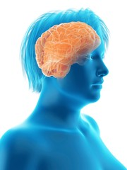 Illustration of an obese woman's brain