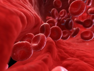 Illustration of an injured artery