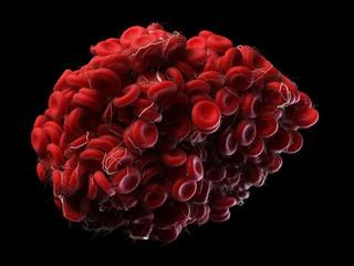 Illustration of a blood clot