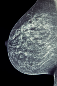 Medical X-Ray / Mammogram Image - Breast