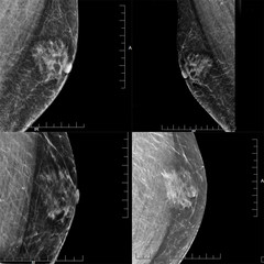 A Series of Four Mammogram images Showing a Male Patient's Gynecomastia (Benign Tumor)