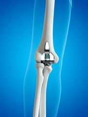 Illustration of an elbow replacement