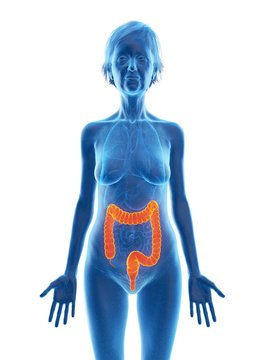 Illustration of an old woman's colon