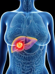 Illustration of a woman's liver cancer