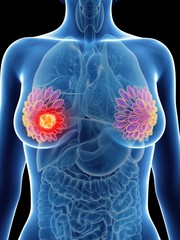 Illustration of a woman's mammary glands cancer