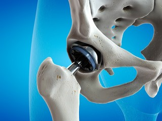 Illustration of a hip replacement