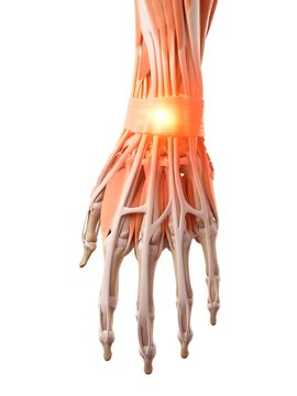 Illustration of a painful wrist