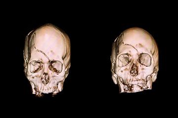 severe skull freacture