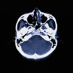 X-ray scanner of head background.