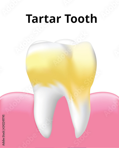 Dental Implant with gum, Screw, isolated on white background