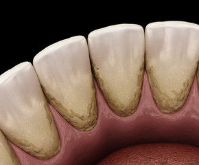 Tartar and bactrail tooth plaque, lower jaw. Medically accurate 3D illustration of human teeth treatment