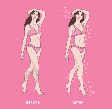 woman body hair removal