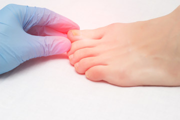 Doctor examines a sore toe infected with fungal infection, close-up, onychomycosis, medical Wall mural