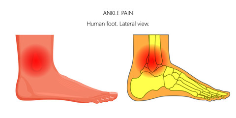 Vector illustration of unhealthy human foot with ankle joint pain or injury. Lateral or side view.  For advertising and other medical publications