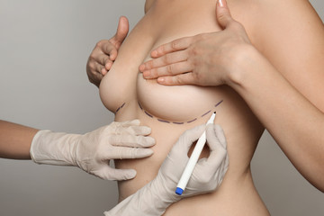 Doctor drawing marks on female breast before cosmetic surgery operation against grey background