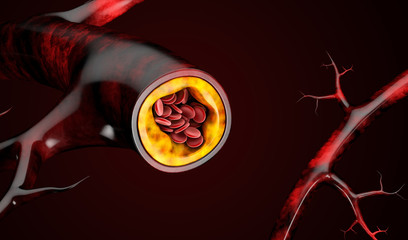 3d Illustration of blood cells with plaque buildup of cholesterol