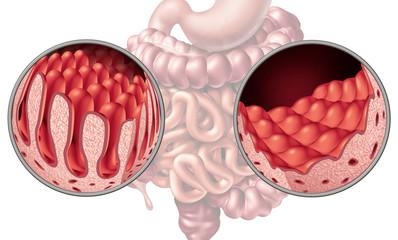 Celiac Coeliac Intestine Disease