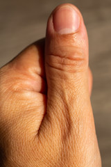 Woman's scar skin on thumb of hand, Close up & Macro shot, Asian Body skin part, Healthcare concept, Abstract background