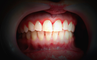 Mouth with bleeding gums on a dark background