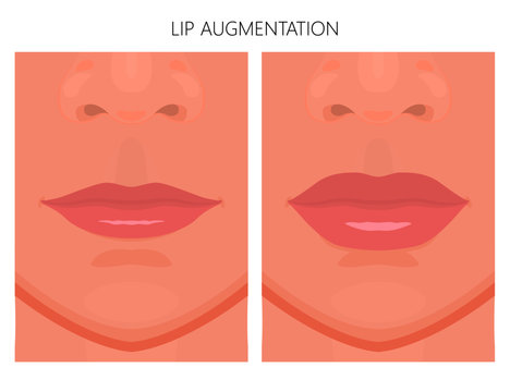 Vector illustration. Lips augmentation on women face, after procedure. Close up view. For advertising of medicinal, pharmacy products, cream, lotion, cosmetic and plastic procedures